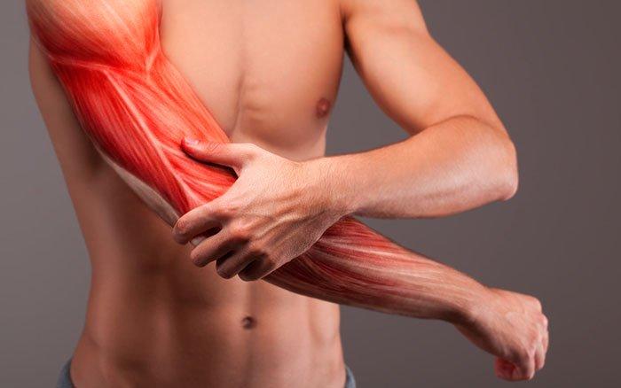 Einfach erklärt: Wie entsteht Muskelkater? Und was ist Muskelkater überhaupt?